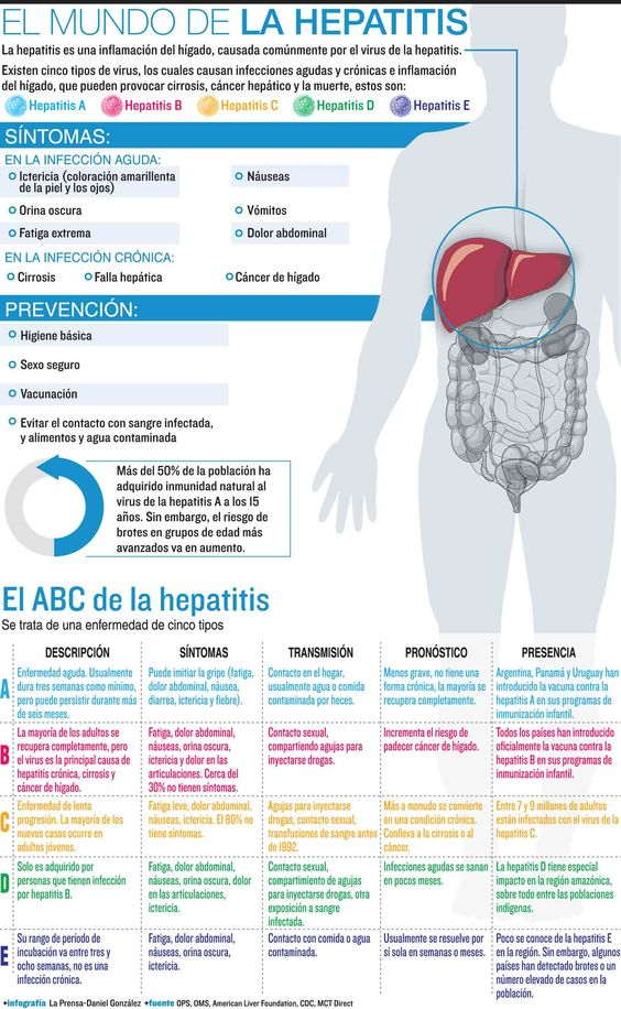 Graphic compares the types of viral hepatitis, A, B, C, D and E. MCT 2007 07000000, HTH, krthealthmed, krtnational national, krtworld world, krt, mctgraphic, 07001002, HEA, krtdisease disease, krthealth health, viral disease, virus, krtusnews, a, b, c, chronic, contamination, d, e, hepatitis, hepatitis a, hepatitis b, hepatitis c, hepatitis d, hepatitis e, ill, illness, infection, inflammation, krt mct, liver, sick, symptom, transmission, type, carr, smith, 2007, krt2007,
